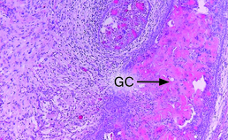 Detail ghost cell-tumor (2)