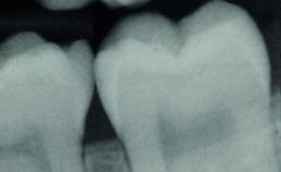 Carieuze laesie in buitenste deel dentine