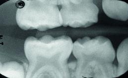 Verzegeling over carieuze laesies in tijdelijke molaren