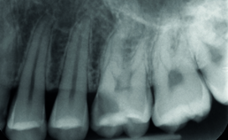 Diepe carieuze laesie tot in dentine