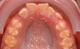 Afwijkend glazuur bij amelogenesis imperfecta