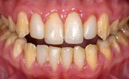 Intraorale opname na orthodontie en chirurgie
