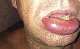 Angio-oedeem van lip