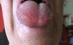 Angio-oedeem van tong