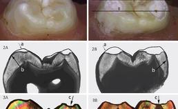 lichtmicroscopische beelden van molaar na 3 maanden erosieve belasting