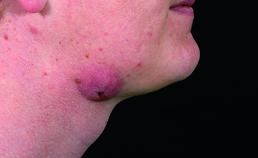 Geabcedeerde lymfadentitis submandibulair