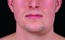 Submandibulaire zwelling links