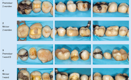 Endodontisch behandelde gebitselementen na verwijdering restauratie