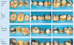 Endodontisch behandelde gebitselementen in de posterieure zone
