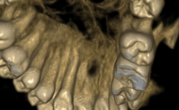 periapicale radiolucentie op driedimensionale rendering