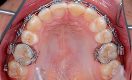 intraoraal aanzicht occlusaal, sluiting diastemen boventandboog