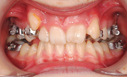 intraoraal aanzicht frontaal, RME met toepassing Hyrax apparaat