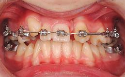 intraoraal aanzicht frontaal, mesialisatie gebitselement 23