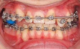 intraoraal aanzicht frontaal, Hyrax vervangen door transpalatinale bar