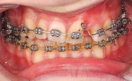 intraoraal aanzicht frontaal, sluiting diasteem door boog met closing-loop