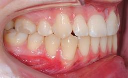 orale situatie na behandeling, rechts