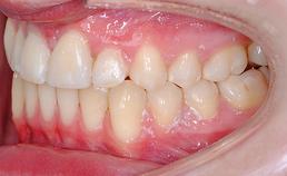 orale situatie na behandeling, links