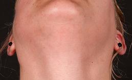 pijnloze diffuse zwelling van parotiden
