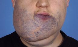 Patiënt met veneuze vasculaire malformatie