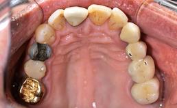 dentitie maxilla, occlusaal aanzicht