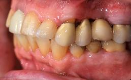 Zijaanzicht dentitie tweede kwadrant met brug