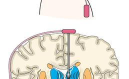 Met neurostimulator verbonden elektrode in de hersenen.