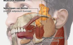 ligging buccaal vetlichaam