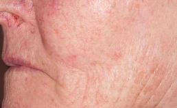 overliggende huid intact, nauwelijks veranderd van kleur