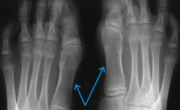 deformatie grote tenen, verkorting middenvoetsbeentjes