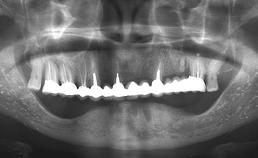 multipele diffuse opake veranderingen over mandibula beiderzijds