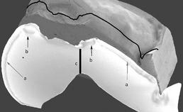 SEM-opname meoppervlakte demineralisatie, beschadigd glazuur en cupvormig defect