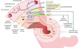 Ontstekingsproces arteriitis temporalis