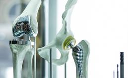heup-kopprothese en knieprothese