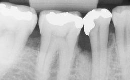 herstel parodontaal defect na AB-behandeling