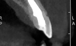 sagittale coupes met gebitselementen 12 en 23 (b)