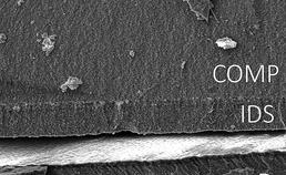 IDS-dentine-grensvlak  endokroon