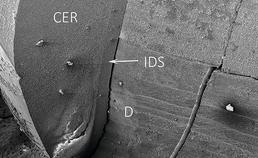 IDS-dentine-grensvlak lithiumdislicaatkroon