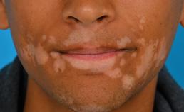 Periorale vitiligo