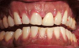 Hyperpigmentatie orale slijmvliezen