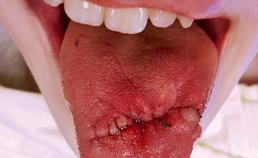 Orale automutilatie: een repetitief tongtrauma
