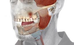 Tandheelkundige slaapstoornissen