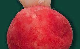 Operatiepreparaat van het  cementoblastoom