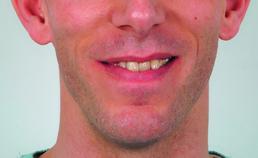 Extraorale opname vóór orthodontische behandeling