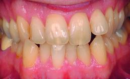 Intraorale opname vóór orthodontische behandeling