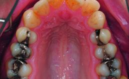 Intraorale opname maxilla vóór orthodontische behandeling