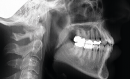 Initiële laterale röntgenschedelprofielopname