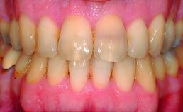 Intraorale opname einde orthodontische behandeling