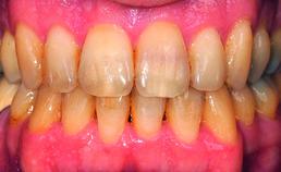 Intraorale opname 6 maanden na einde orthodontische behandeling