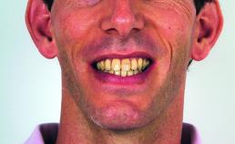 Extraorale opname einde orthodontische behandeling