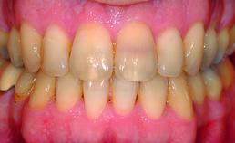 Intraorale opname patiënt einde orthodontische behandeling